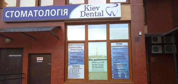 Скидка до 60% на установку керамической коронки, лечение кариеса в клинике «KievDental»