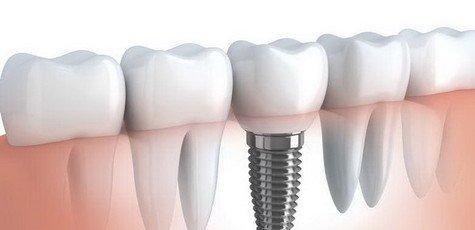 Implantatsiya-zubov-720x340