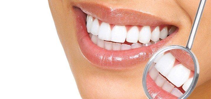Скидка 30% на фотоотбеливание зубов в «Мега Дент»