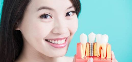 Скидка до 49% на установку зубных имплантов в центре стоматологии и УЗ-хирургии «Sciedece»