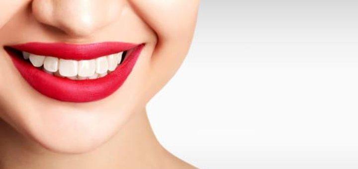 Установка брекет-системы в стоматологической клинике «L-STOM»