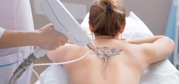 Удаление татуажа и татуировок лазером в центре косметологии «MEDLINE»