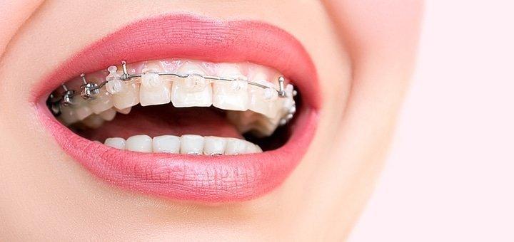 Скидка до 63% на установку брекетов в стоматологии «New Smile»