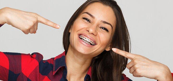 Скидка до 81% на установку брекет-системы в стоматологии «Dental Aesthetic Clinic»